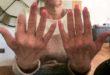 بسبب الأظافر الصناعية.. سيدة تتعرض لبتر إصبع السبابة بعد إصابتها بعدوى