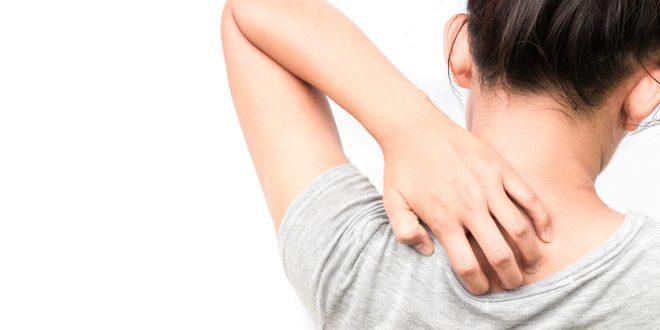 اسباب حكة الجلد في الليل منها تغير فى هرمونات الجسم