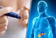 أمراض جلدية يسببها مرض السكرى