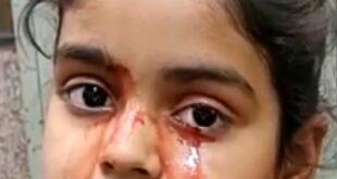 فتاه هندية تبكى بدل الدموع دم فى حالة طبية نادرة