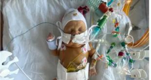 """ولادة طفل بحجم """"جهاز التحكم"""" فى حالة نادرة بعد خضوعه لجراحتين"""