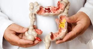 إرشادات غذائية لمريض القولون العصبى