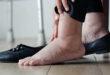 علاجات طبيعية للوذمة وتورم القدمين