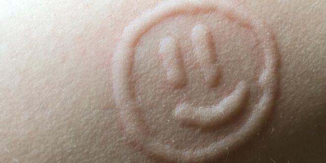 مراهقة تستغل إصابتها بحساسية الجلد لوضع رسومات وشعارات على جسدها