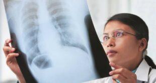 4 اختبارات تكشف إصابتك بالانسداد الرئوى المزمن