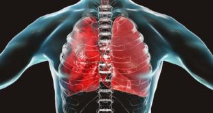 تلف الرئة والقلب يتحسن مع مرور الوقت للمتعافين من كورونا