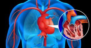 دواء التهاب المفاصل قد يحسن المراحل المبكرة من أمراض القلب