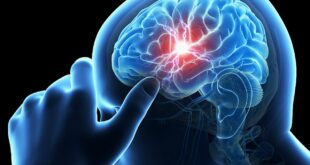 أسباب السكتة الدماغية أبرزها نزيف مفاجئ فى شرايين الدماغ