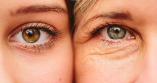 الفرق بين الجلوكوما وإعتام عدسة العين