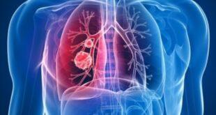 باحثون أمريكيون يطورون تقنية استخدام الموجات الصوتية لتقييم أمراض الرئة