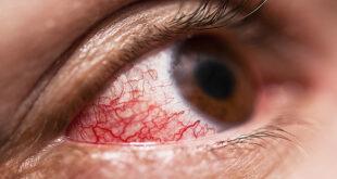 علماء أمريكان يتوصلون لطريقة جديدة لعلاج أمراض شبكية العين