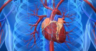 كل ما تريد معرفته عن عملية القلب المفتوح
