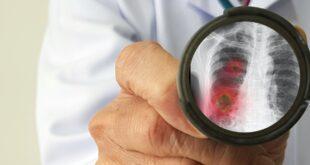 ما هى أسباب تكون جلطات الدم لدى مرضى كورونا وطرق الوقاية منها؟