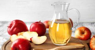 هل يساعد خل التفاح فى علاج الصدفية؟
