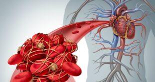 7 علامات تؤكد تأثر دمك بعدوى كورونا أخطرها السكتة الدماغية