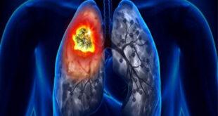 تعرف على الأعراض النادرة لسرطان الرئة.. اعتلال المفاصل الأبرز