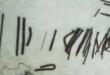 أطباء يستخرجون مسامير وقطع معدنية حادة من بطن مريض إثيوبى