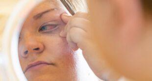 بريطانية تغلق عينها بعد وضع صمغ الأظافر بها بالخطأ