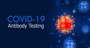 اختبار الأجسام المضادة لكوفيد-19.. متى نجريه بعد تلقي لقاح كورونا؟