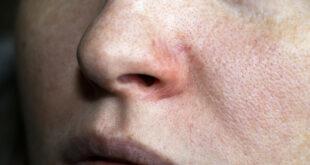 تظهر على الوجه بسبب تغيرات الطقس أو ضغط الدم.. تعرَّف على الأوردة العنكبوتية وطرق التعامل معها وأسبابها