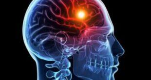 كل ما تريد معرفته عن أعراض وأنواع السكتة الدماغية ونصائح للوقاية