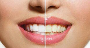 انتبه هذه المشروبات تغير لون أسنانك.. احذر من القهوة وعصير التوت